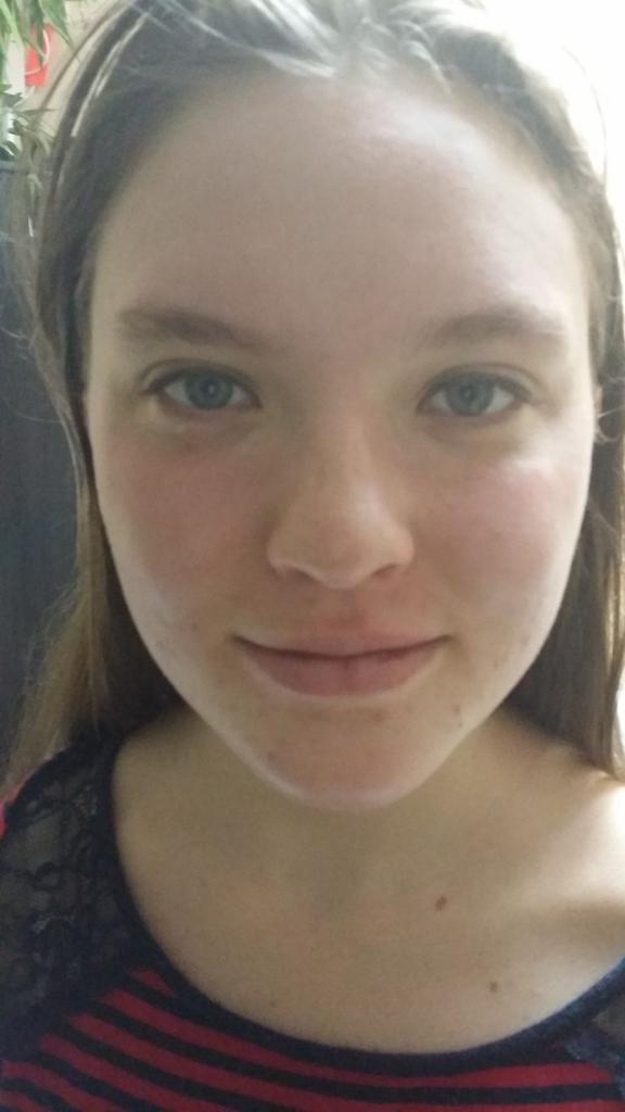 tampa facials for teens