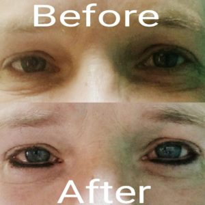 Permanent Makeup Eyeliner Before And After Bellissimo You