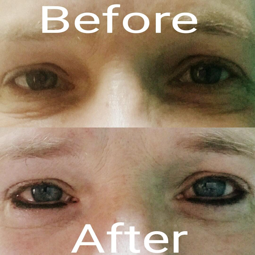 Permanent Makeup Eyeliner Before And After Tampa