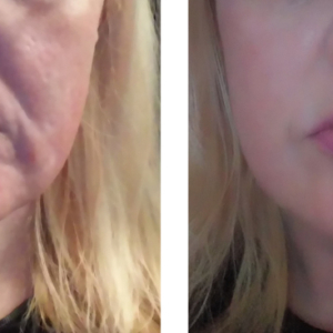facial skin tightening treatments