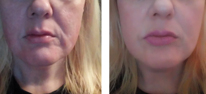 Facial skin tightening think