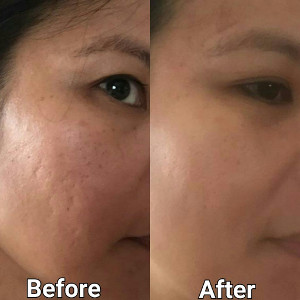 Micro Needling - Treat Acne And Large Pores | Bellissimo You